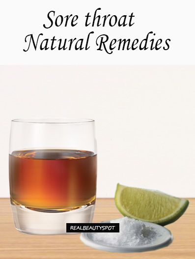 Easy and Natural Remedies for Sore Throat