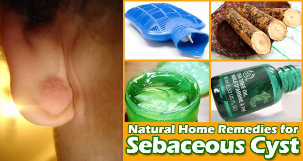 Natural treatments for a sebaceous or epidermoid cyst - http://eradaily.com/natural-treatments-sebaceous-epidermoid-cyst/