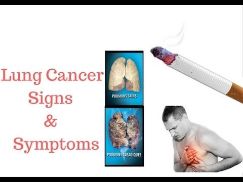 Early Sign and Symptoms of Lung Cancer