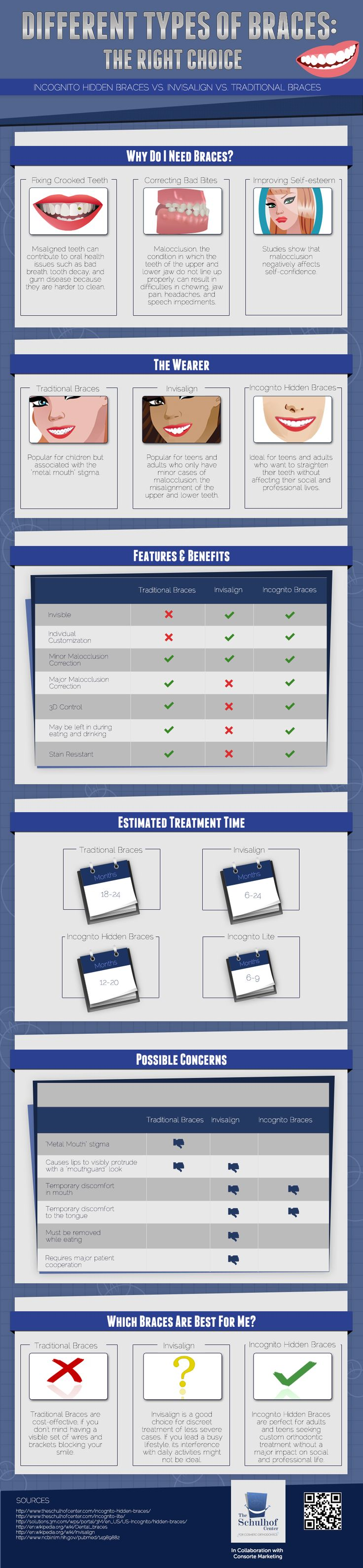 The different types of braces. #braces #Theschulhofcenter #infographic