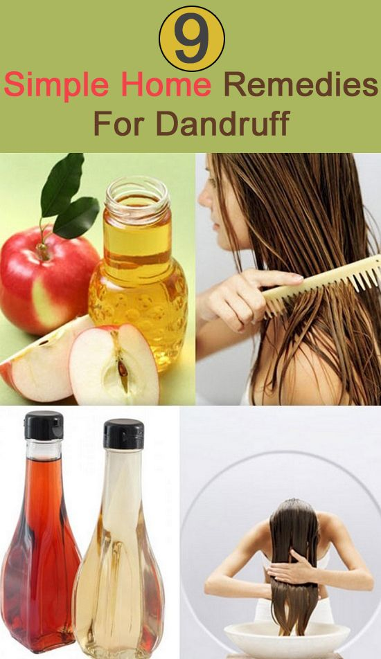 Dandruff Home Remedies : Click Here to read most popular home remedies for dandruff.