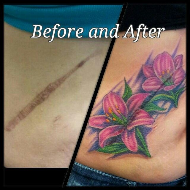 30 best light flower tattoos over scars images on for Cool cover up tattoos