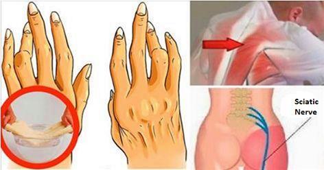 Esto elimina el dolor de artritis, dolor de espalda y ciática. ¡Funciona mejor que las pastillas!