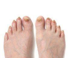 Cómo eliminar las uñas negras u hongos del pie