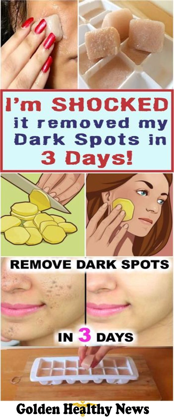 Im SHOCKED it removed my Dark Spots in 3 Days Potato & lemon juice icecubes
