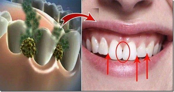 Устраните неприятный запах изо рта за 5 минут! Это средство уничтожит все бактерии, которые вызывают неприятный запах изо рта!
