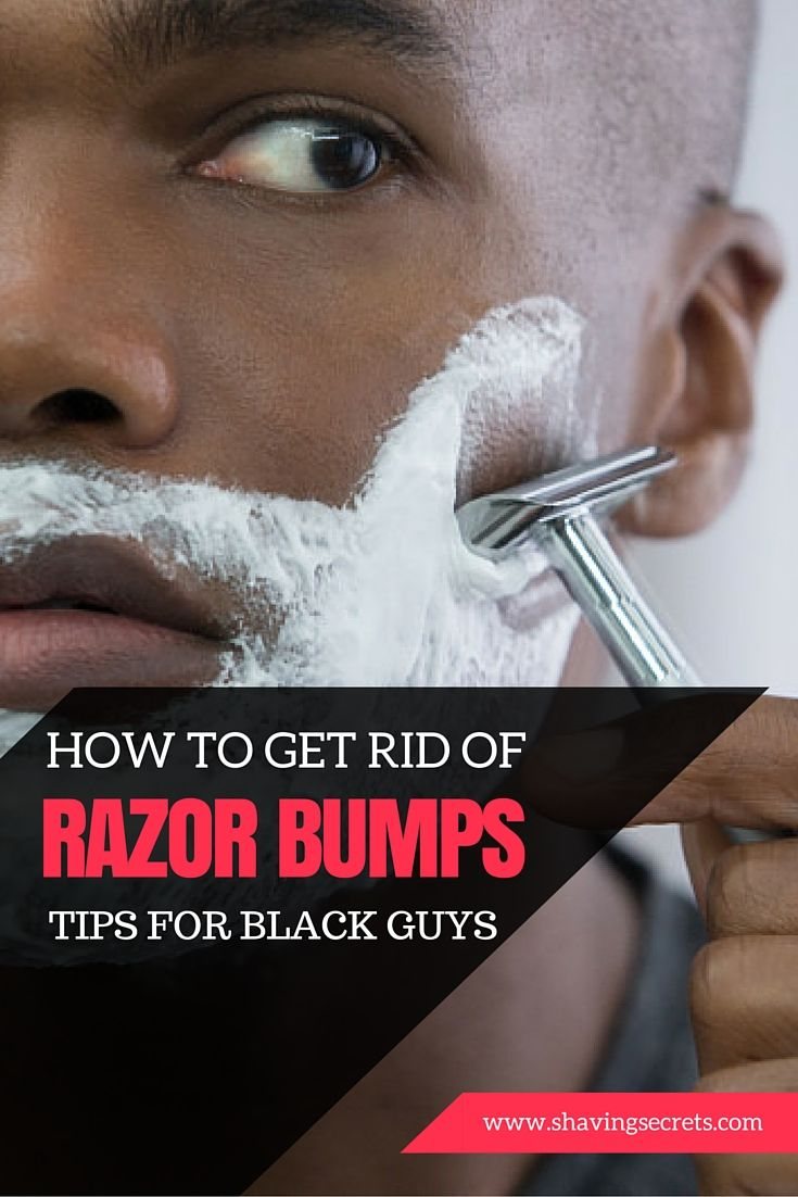 Saying Bye To The Bumps: How To Get Rid Of Black Men's #razor Bumps