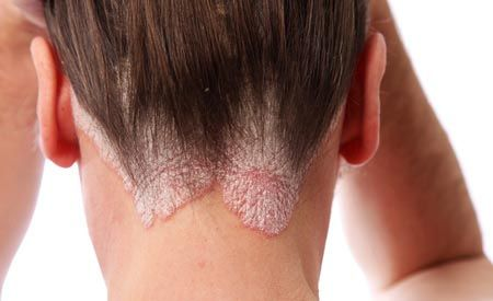 Ganzheitliche Behandlung von Schuppenflechte (ausführlich)