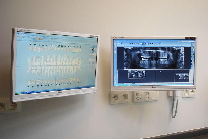 Dentiste Bruxelles, Implants dentaires et Dentisterie Spécialisée: Implant Dentaire, Protheses, Couronnes, Endodontie, Pédodontie, Esthétique Dentaire - Cabinet