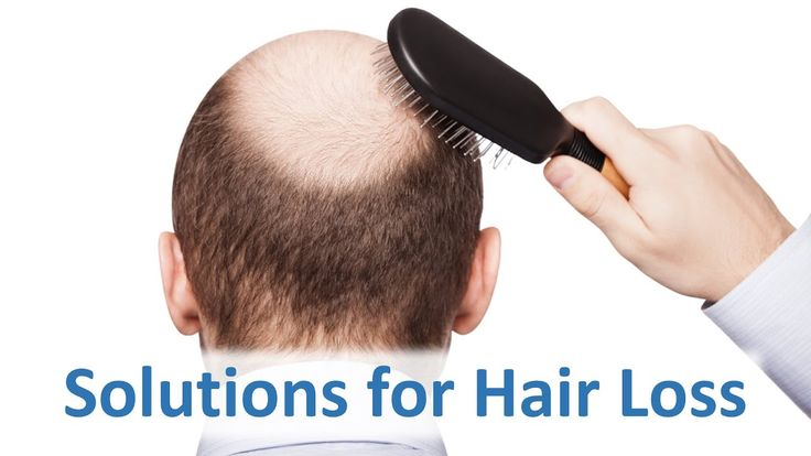 How To Prevent Excessive Hair Fall Naturally