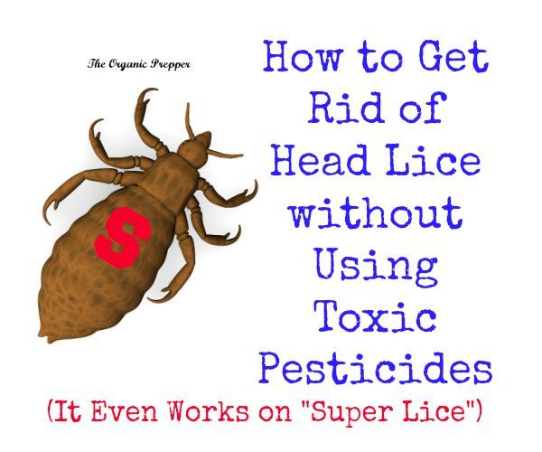 This Chemical-Free Head Lice Removal Method Works on Super Lice  #lice #chemical-free #homeremedy