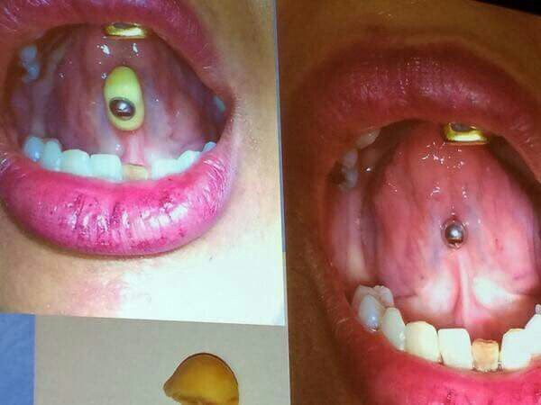 Tongue ring with calculus