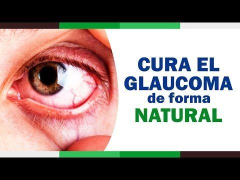 Como tratar el Glaucoma (presion ocular) de forma Natural | Remedios para el Glaucoma
