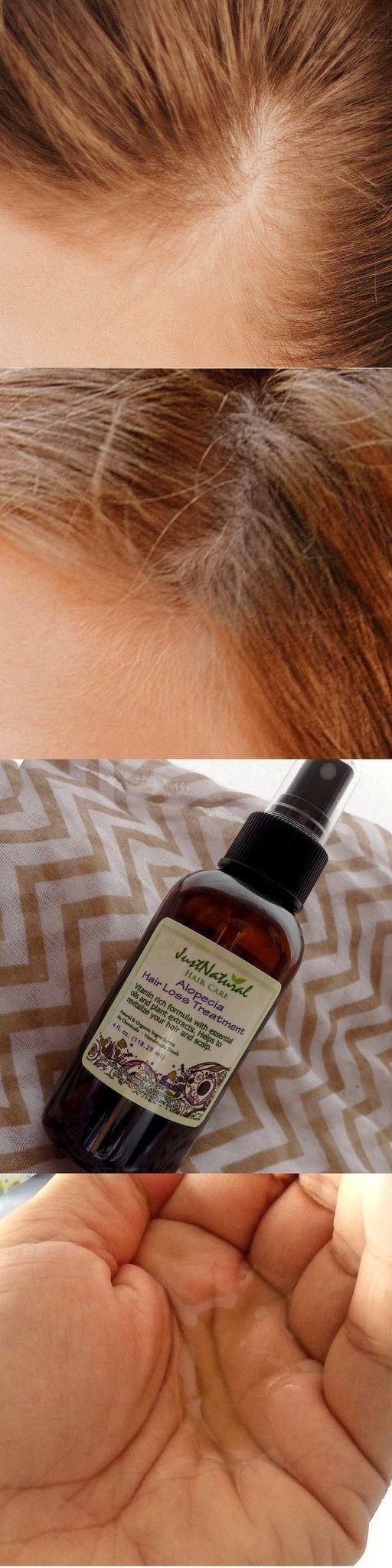 Alopecia Hair Loss Treatment http://www.hairgrowinggenius.com/