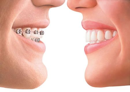 Standard Orthodontist Prices for Braces and Invisalign There are numerous different types of braces. There are the standard metal ones that cost from $5,000
