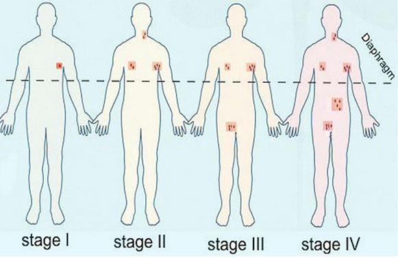 non hodgkin's lymphoma grades