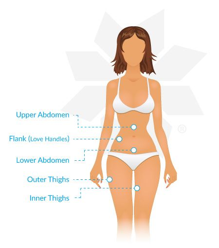 View the stubborn fat areas that CoolSculpting can help you eliminate.  No knives. No suction hoses. No needles. No scars. See our before and after photos and CoolSculpting reviews. Ask us about CoolSculpting cost   For more info, visit  http://www.finesseplasticsurgery.com/procedures/coolsculpting
