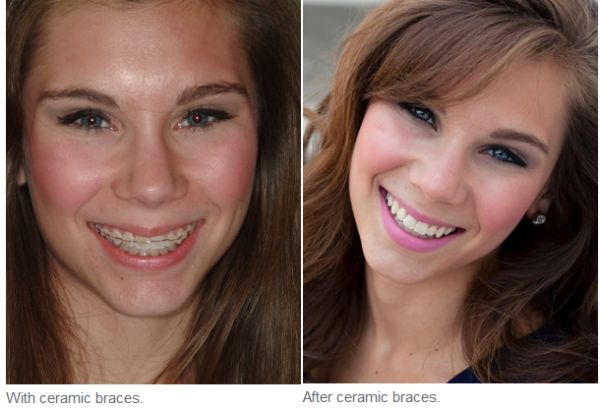 Adult Orthodontics in Indianapolis  Today, because of newer options, advances in dental technology, and increasing awareness of the importance of oral health, more and more adults are open and less scared to get orthodontic help. Adult orthodontics in Indianapolis comprises 20% of the population of brace wearers.