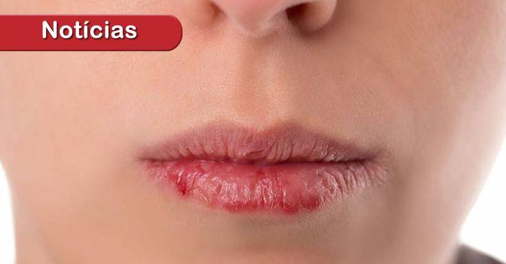 """De acordo com o dentista, quanto mais cedo o diagnóstico, melhor.Por isso é importante aprender a realizar o autoexame. """"É preciso observar se há feridas na boca que não cicatrizam (podendo sangrar ou não), caroços, inchaços, alterações na coloração da mucosa oral, dentre outros"""", comenta. https://souenfermagem.com.br/artigo/cancer-de-boca-saiba-identificar"""