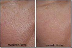 3 Masken für feine Poren - Besser Gesund Leben: