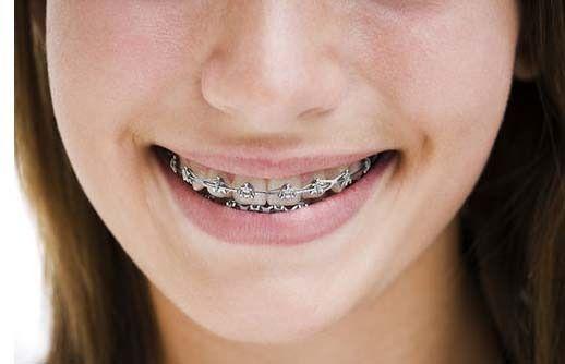 new dental Better Braces