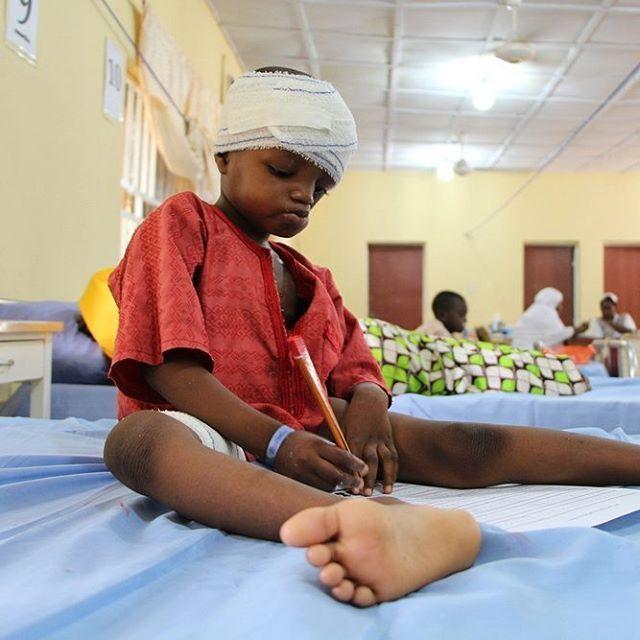 Six-year-old Zayyanu Murtala recovers from surgery to reconstruct a hole in his jaw and damage to his eye, caused by the flesh-eating disease known as 'noma', at MSF's children's hospital in Sokoto, northwest Nigeria. Coming from the Greek word for 'to devour', noma begins as an ulcer inside the mouth, which then eats away at the cheek tissue and bones in the mouth area of the infected person. Left untreated, the disease is fatal in up to 90 percent of cases. However, if treated early, the…