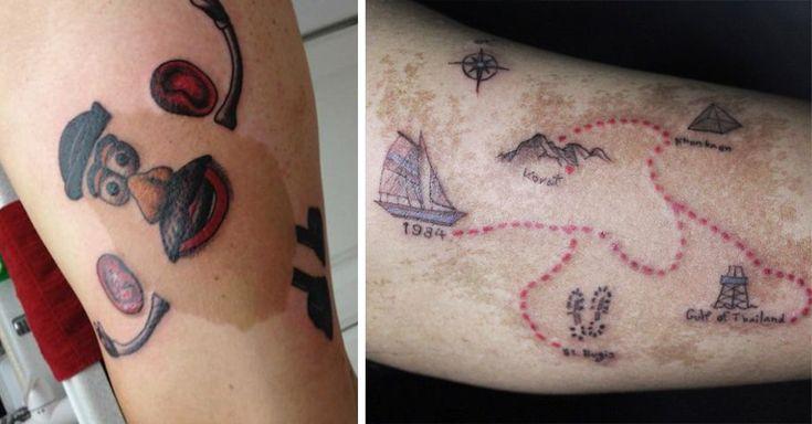 Las marcas de nacimiento son una característica común de nuestra piel, sin embargo algunas personas están colocando tatuajes sobre ellas para ocultarlas