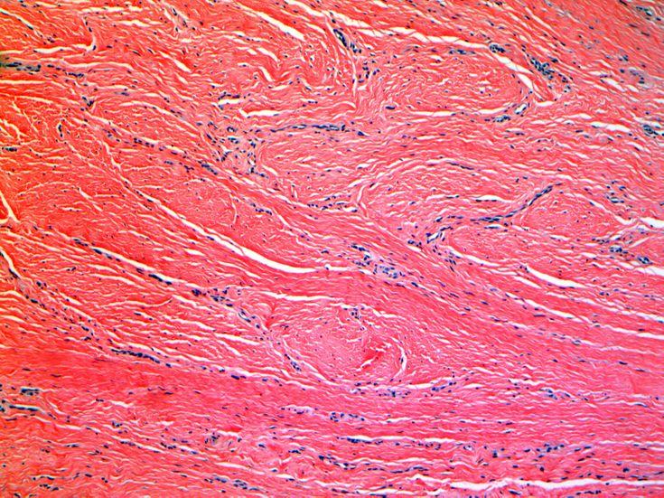 Collagen and keloid pathology- keloid under microscope showing collagen bundles
