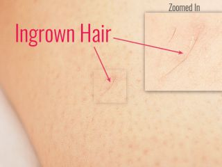 example of ingrown hair