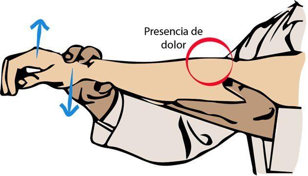 Aprende a Tratar Naturalmente Tus Problemas de Epicondilitis ó Codo del Tenista | TUSALUDESVIDA