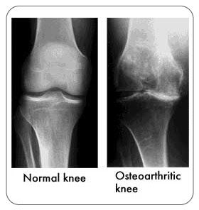 Deep heat Therapy Effective for Knee Osteoarthritis. Research: The effect of heat application on pain, stiffness, and physical function in patients with knee osteoarthritis. #tshellz