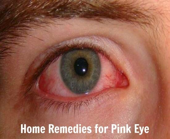 how to naturally get rid of rebound redeye