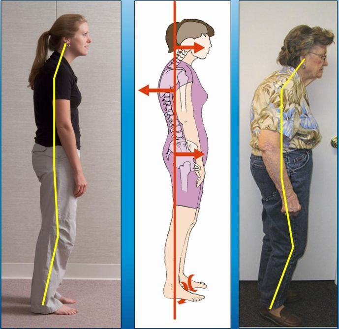 Forward Head Posture, a Common Factor in Fibromyalgia Syndrome