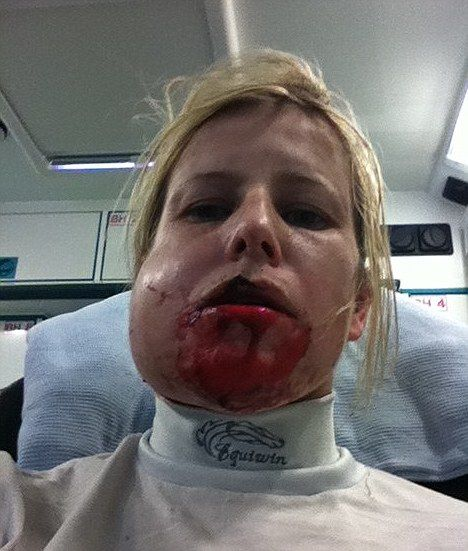 Tmj Injury From Car Accident