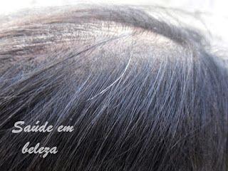 Saúde em beleza: Causas da queda de cabelo ( Alopecia) #cabelo