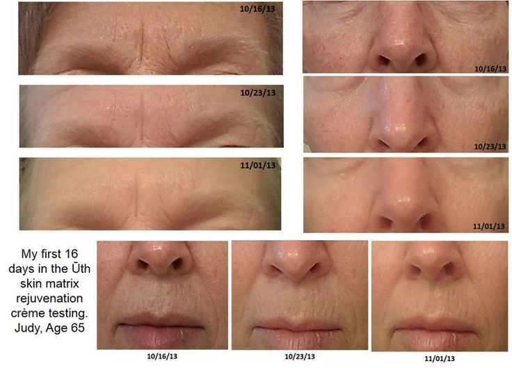 Just 16 days of using our Uth creme!! What an amazing difference!
