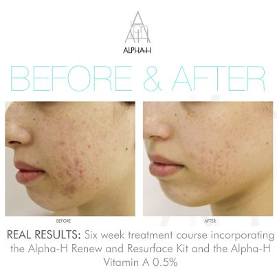 Real people, real results, Alpha-H love helping people improve their skin! #greatskin #improvingskin #nomoreacne #resurfacingskin #alphahskincare #acne