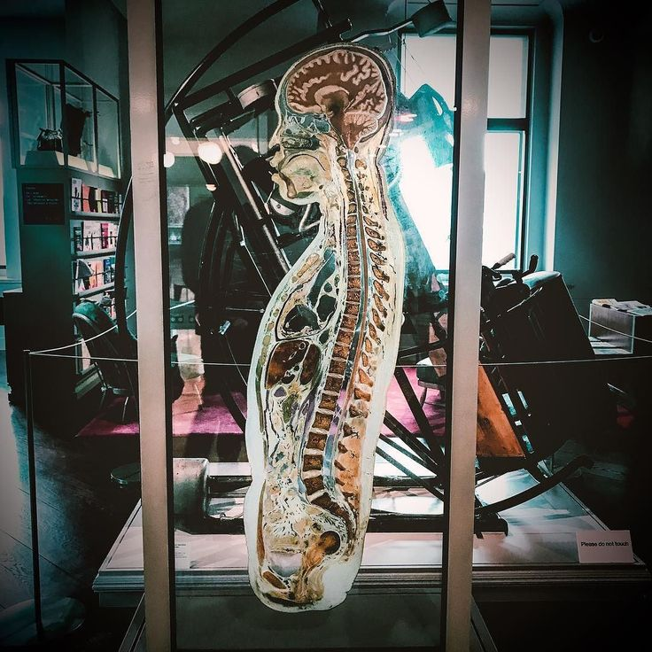 Human slice.  #ldn #london #londoner #londonlife #londongirl #londoncalling #londoncity #londonlove #londonstyle #london_only #londontown #instagood #instalondon #igers #igersuk #igerslondon #igersoftheday #architecture #urban #urbanlife #urbanstyle #urbanliving #urbanphotography #anatomy #medicine #medical #exhibition #spine #science #brain