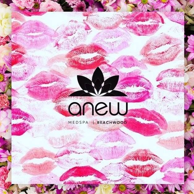 Love your lips! We can help you get the Anew lips you want! Call us today! #ANEWmedspa #anewyou #anewyou2017 #ANEW #anewbeginning #anewbeachwood #botox #fillers #juvederm #restylane #silkpeel #dermalinfusion #skincare #medspa #hairremoval #underarmsweating #coolsculpting #fatreduction #bodycontouring #freezethefat #freezefat #lips #loveyourlips http://ift.tt/2miY4Wh