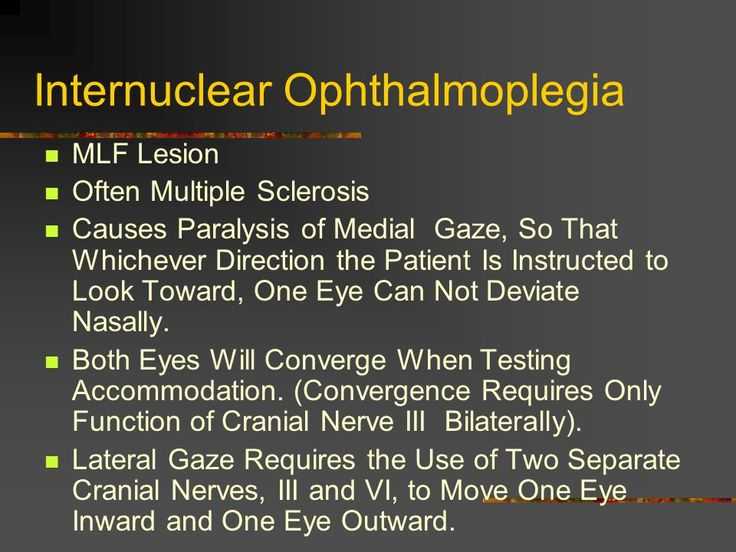 Image result for posterior Internuclear ophthalmoplegia