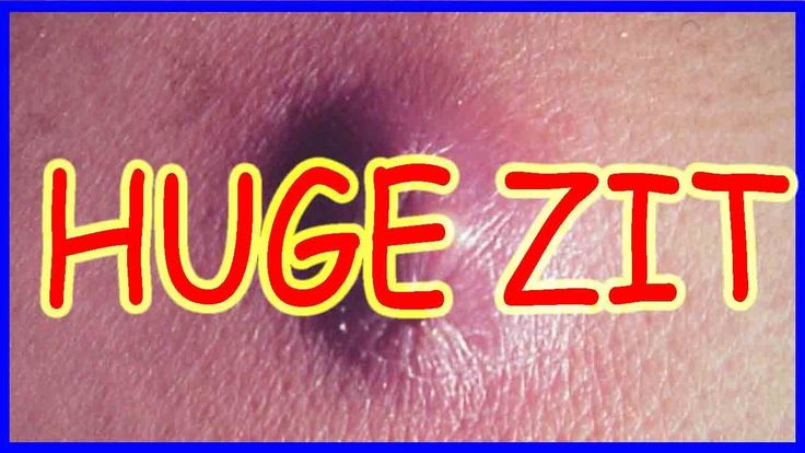 "HUGE ZIT. REMOVAL BOIL (big hole after removal) ""All pimples & Health"""
