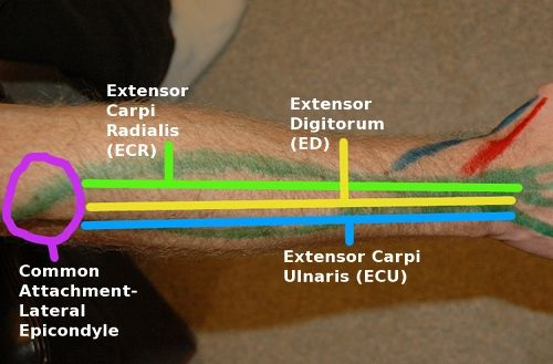 use of passive finger flexion by contraction of wrist extensors - when finger flexors are weak (tenodesis)