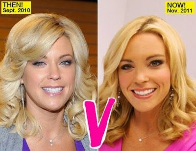 Kate Gosselin is a renowned celebrity with amazing appears. She's mom of ten children but she continues to be solitary. She's got no aim to have hitched. Kate Gosselin has revealed her times with her attractive bodyguard Steve Neild