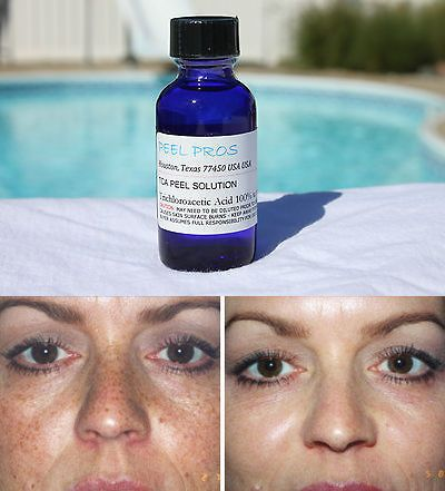 Masks and Peels: Lrg Age Spot Wrinkle Skin Tag Acne Tca Chemical Peel 100% -> BUY IT NOW ONLY: $37.46 on eBay!