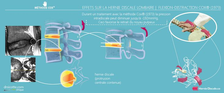 Les effets sur la hernie discale lombaire. La flexion distraction Cox pour…