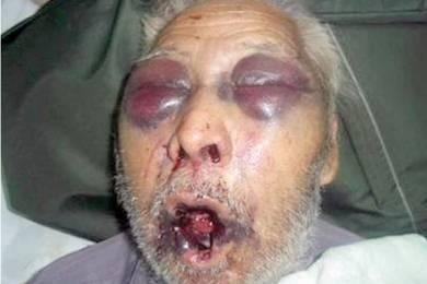 Diario Cronica   En Las Heras golpean salvajemente a un abuelo