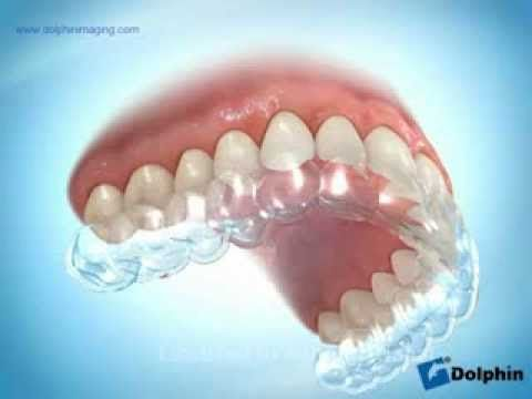Clear Retainer after Braces or Invisalign -