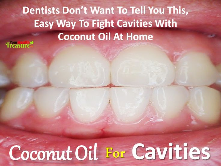 How to Reverse Cavities Naturally and Heal Tooth Decay