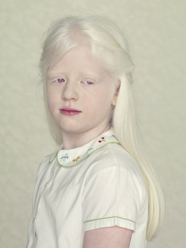 Beautiful portraits of albinos by Gustavo Lacerda ...