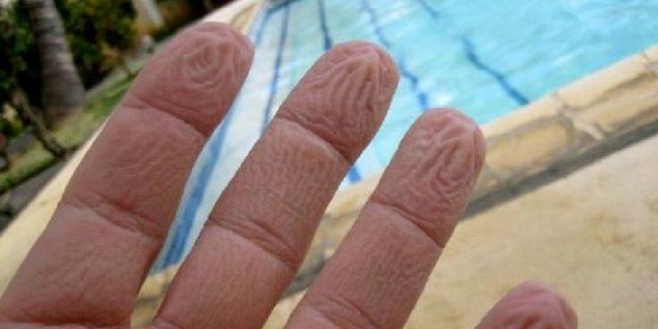Γιατί ζαρώνουν τα δάχτυλά σας μέσα στο νερό – Όχι, δεν είναι επειδή «μούλιασαν»…